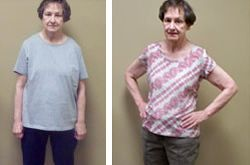 Betsy: before and after weight loss